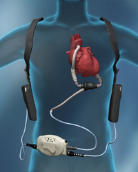LVAD-What is it?